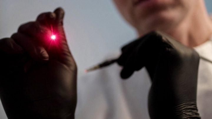 Endolift – najnježniji laser na svijetu