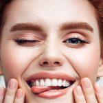 Ljuskice - sinonim za savršeni osmijeh