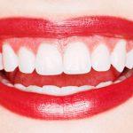 Novi osmijeh za manje od 24 sata